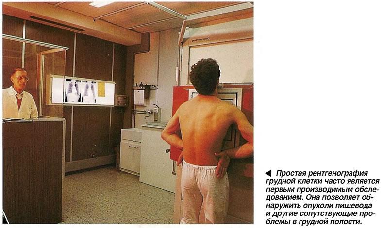 Простая рентгенография грудной клетки часто является первым производимым обследованием