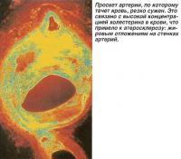 Просвет артерии, по которому течет кровь, резко сужен