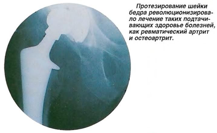 Протезирование шейки бедра таких болезней как ревматический артрит и остеоартрит
