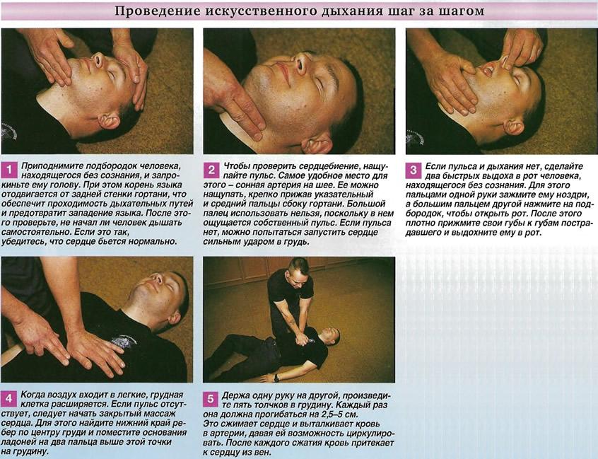 Проведение искусственного дыхания шаг за шагом