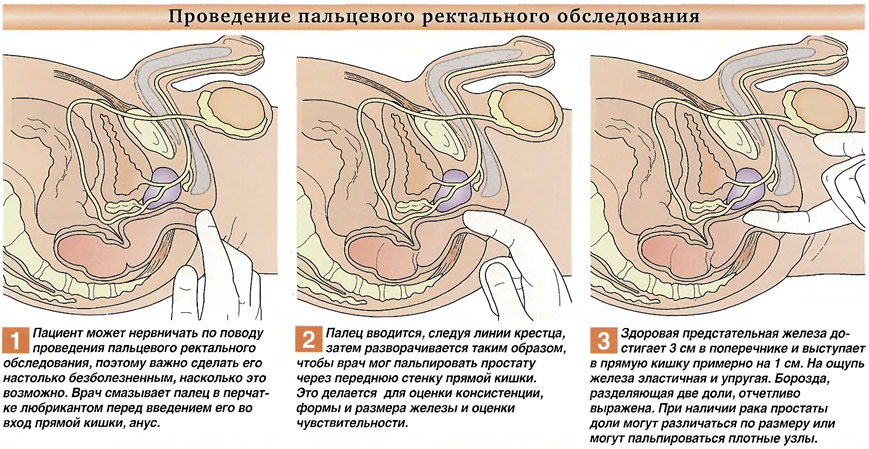 Проведение пальцевого ректального обследования