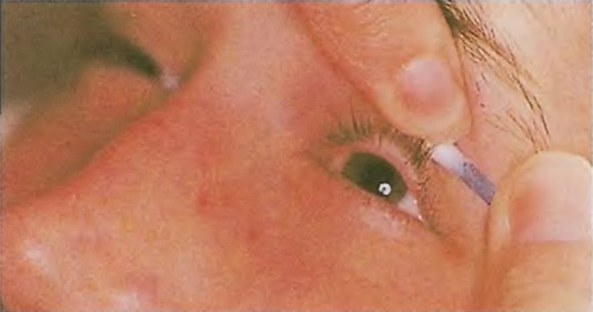 Проверка глаза на наличие чужеродного тела