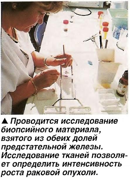 Проводится исследование биопсийного материала