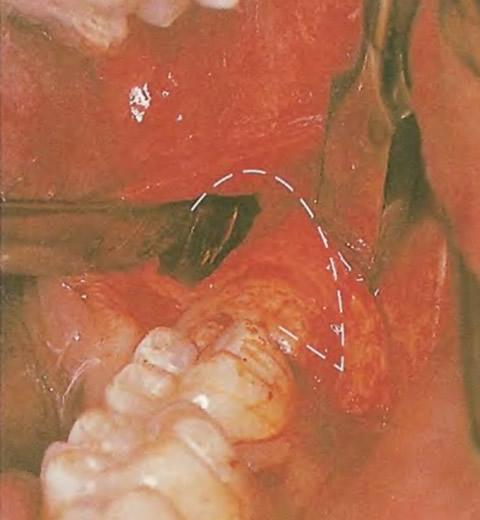 Проводится полукруглый разрез воротника кости