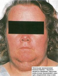 Проявлениями болезни являются ожирение, гирсутизм (избыточное оволосение)