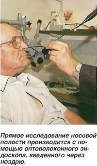 Прямое исследование носовой полости с помощью оптоволоконного эндоскопа