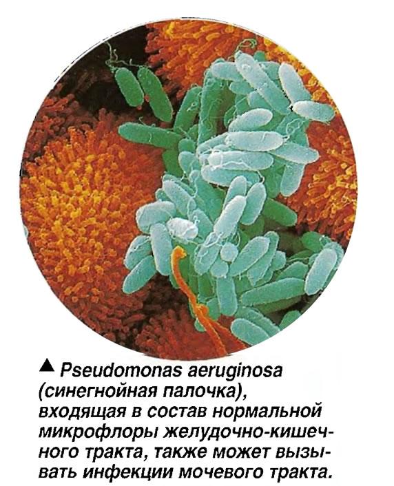 Pseudomonas aeruginosa (синегнойная палочка)