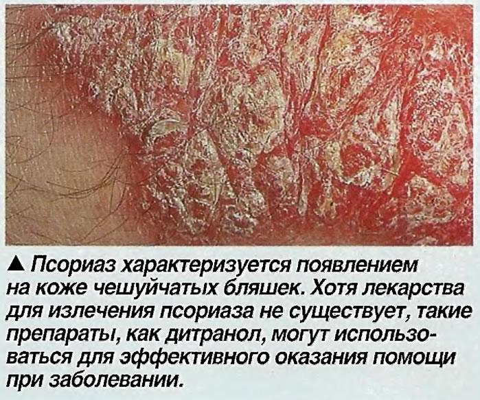 Псориаз характеризуется появлением на коже чешуйчатых бляшек.