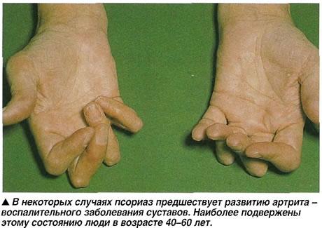 Псориаз предшествует развитию артрита