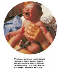 Пуповину ребенка необходимо пережать сразу после родов