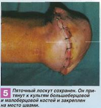 Пяточный лоскут