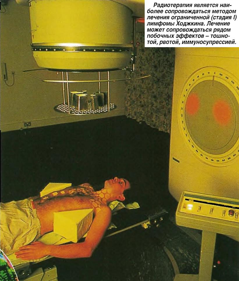 Радиотерапия является методом лечения ограниченной (стадия I) лимфомы Ходжкина