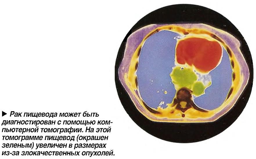 Рак пищевода может быть диагностирован с помощью компьютерной томографии