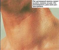 Рак щитовидной железы может вызвать опухоль на шее