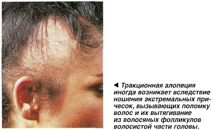 ракционная алопеция иногда возникает вследствие ношения экстремальных причесок