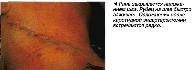 Рана закрывается наложением шва