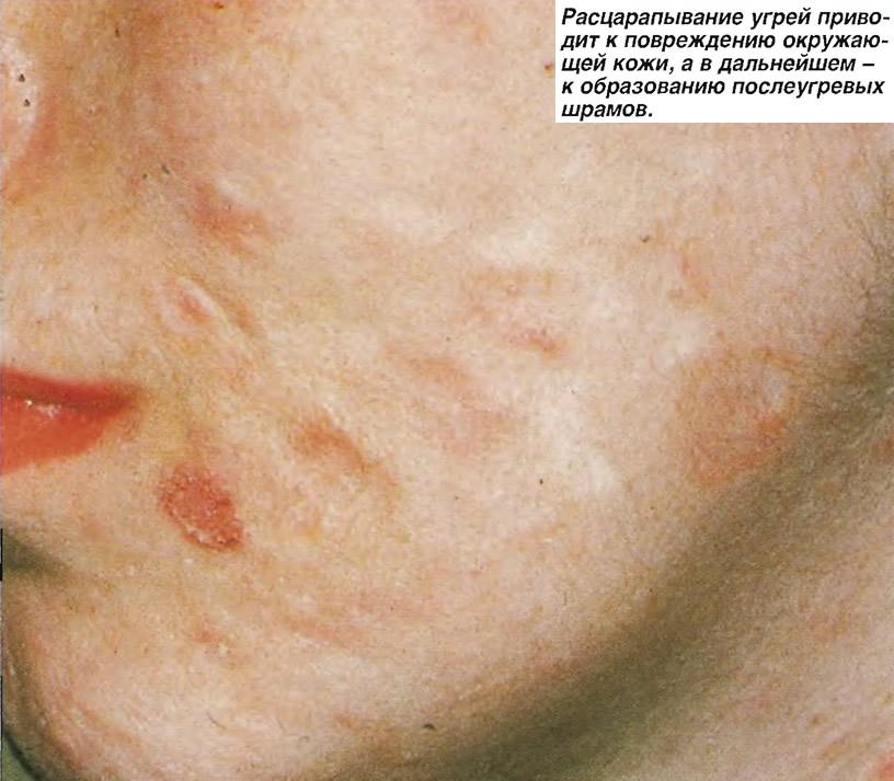 Расцарапывание угрей приводит к повреждению окружающей кожи