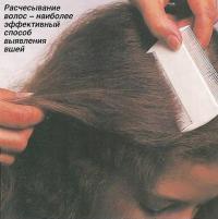 Расчесывание волос - наиболее эффективный способ выявления вшей