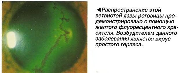 Распространение этой язвы роговицы продемонстрировано с помощью желтого флуоресцентного красителя