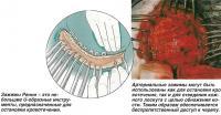 Рассечение кожи головы