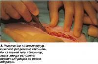 Рассечение означает хирургическое разделение какой-либо из тканей тела