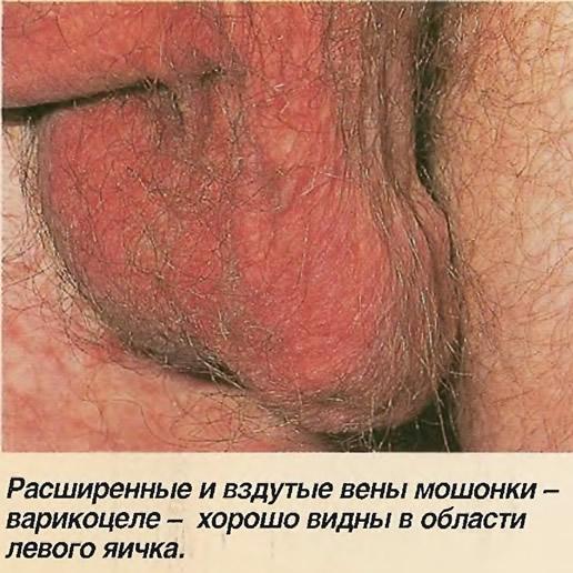 Расширенные и вздутые вены мошонки - варикоцеле