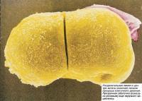 Разделительная линия в центре зиготы означает начало процесса клеточного деления