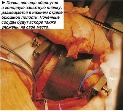 Размещение почки в нижнем отделе брюшной полости.