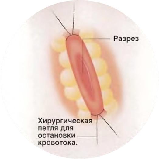 Разрез длиной 1 см в месте шунтирования