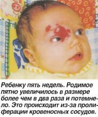 Ребенку пять недель. Родимое пятно увеличилось более чем в два раза
