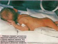 Ребенок страдает цитомегаловирусной инфекцией, входящей в группу вирусов герпеса