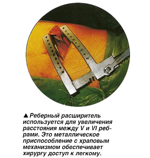 Реберный расширитель используется для увеличения расстояния между V и VI ребрами