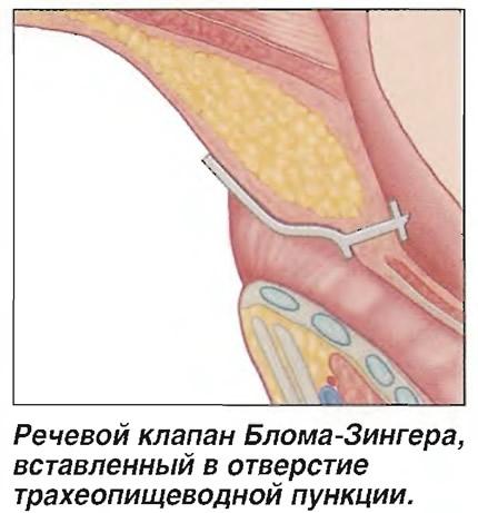 Речевой клапан Блома-Зингера, вставленный в отверстие трахеопищеводной пункции