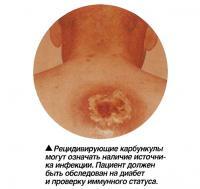 Рецидивирующие карбункулы могут означать наличие источника инфекции