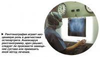 Рентгенография играет неоценимую роль в диагностике остеоартрита