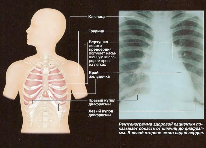 Рентген бронхов как сделать