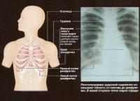 Рентгенограма здоровой пациентки