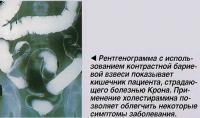 Рентгенограмма кишечника пациента, страдающего болезнью Крона