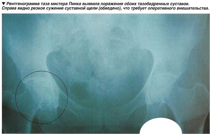 Рентгенограмма таза мистера Пинка