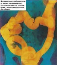 Рентгеноконтрастное исследование с использованием сульфата бария