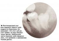 Рентгеновский снимок нижнего левого зуба мудрости