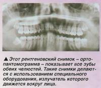 Рентгеновский снимок показывает все зубы обеих челюстей