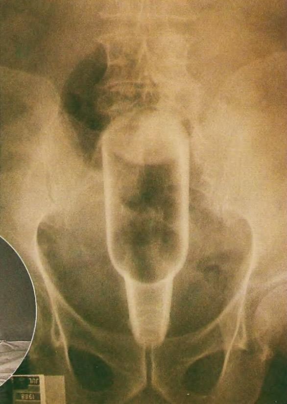 Рентгеновский снимок таза пациента показывает бутылку в прямой кишке