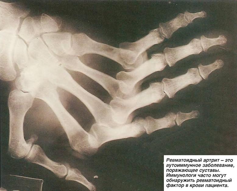 Ревматоидный артрит - аутоиммунное заболевание, поражающее суставы