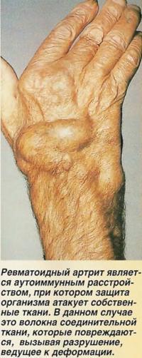 Ревматоидный артрит является аутоиммунным расстройством