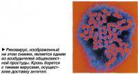 Риновирус, изображенный на этом снимке, является одним из возбудителей общеизвестной простуды
