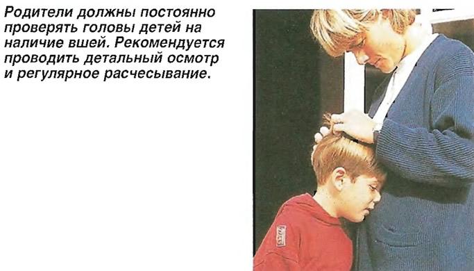 Родители должны постоянно проверять головы детей на наличие вшей