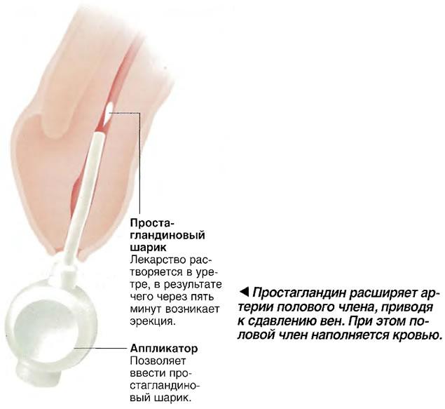ростагландин расширяет артерии полового члена, приводя к сдавлению вен