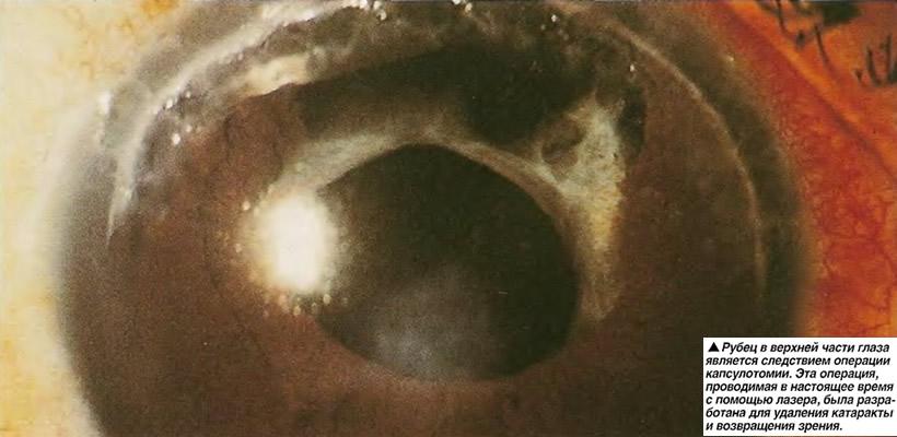 Капсулотомия
