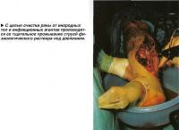 С целью очистки раны от инородных тел и инфекционных агентов производится ее тщательное промывание